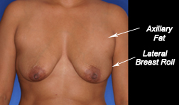 Axillary fat and lateral breast roll