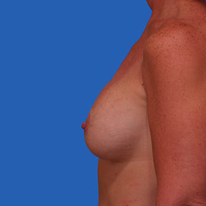 Asymmetrical breasts after lift and implants - side view