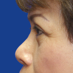 After upper eyelid correction - side view