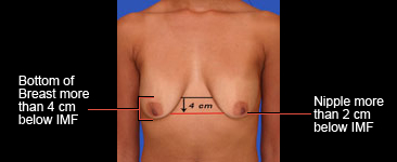 Ideal nipple placement for lollipop lift
