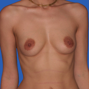 Before mommy make over breast augmentation - front view