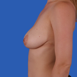 Before lollipop breast lift in mommy makeover - side view